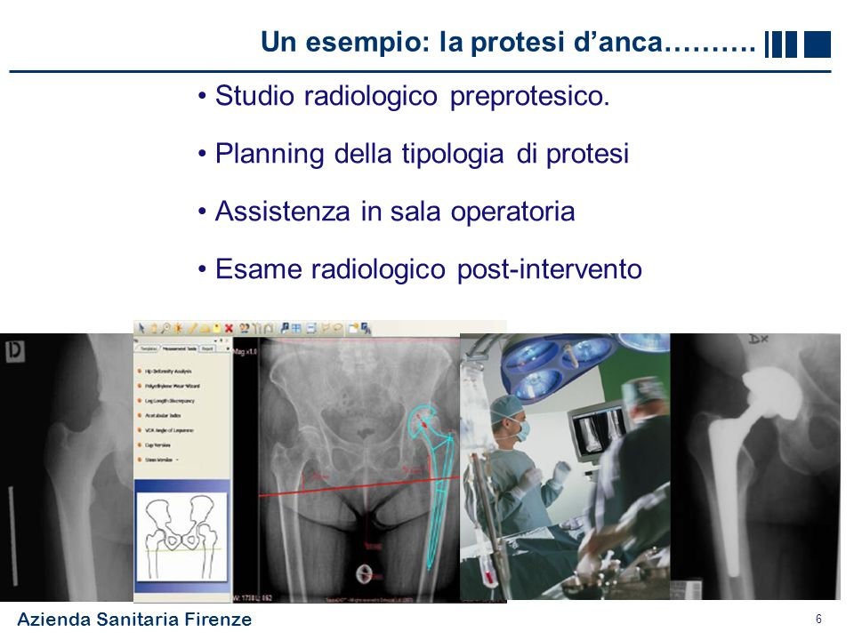 Un esempio: la protesi d'anca……….