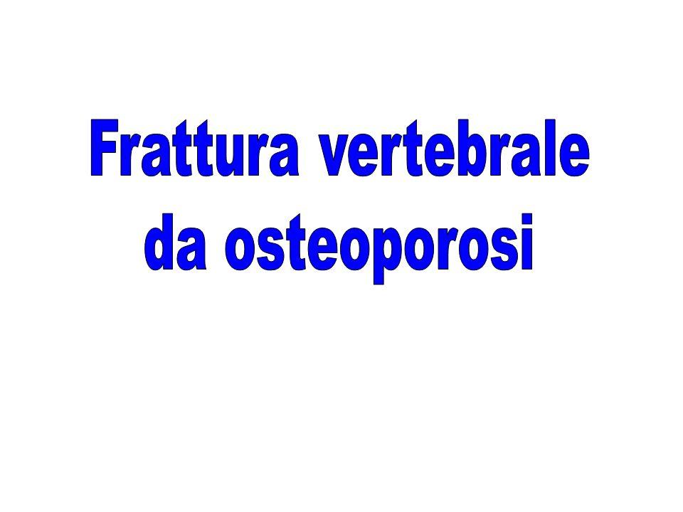 Frattura vertebrale da osteoporosi