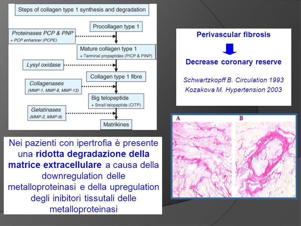 Perivascular fibrosis Decrease coronary reserve