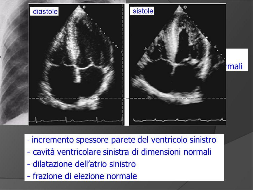 - cuore di dimensioni normali