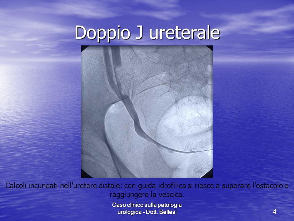 Caso clinico sulla patologia urologica - Dott. Bellesi