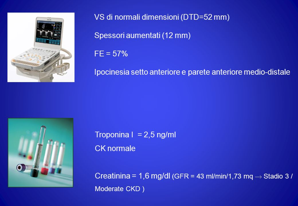 VS di normali dimensioni (DTD=52 mm)
