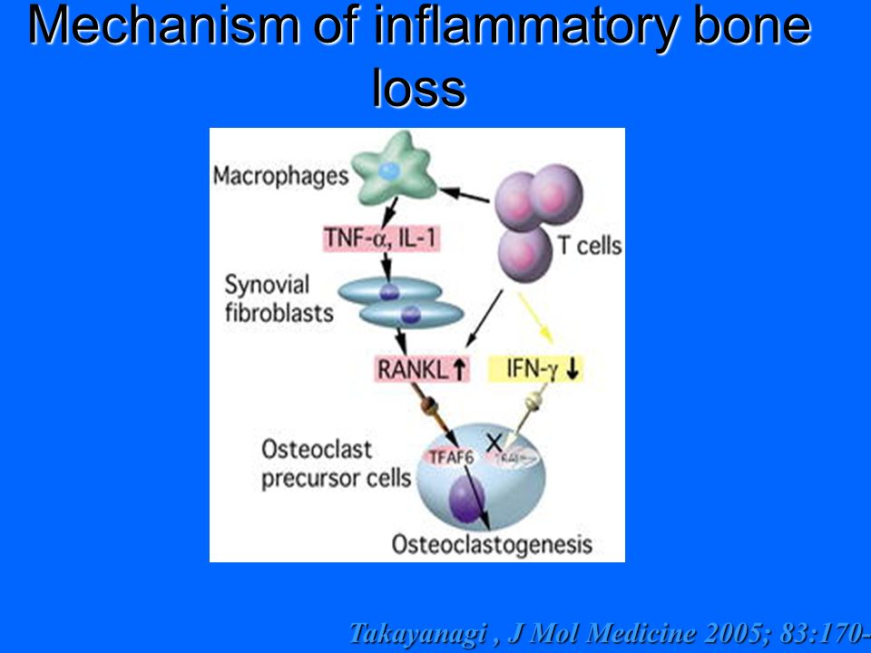 Mechanism of inflammatory bone loss