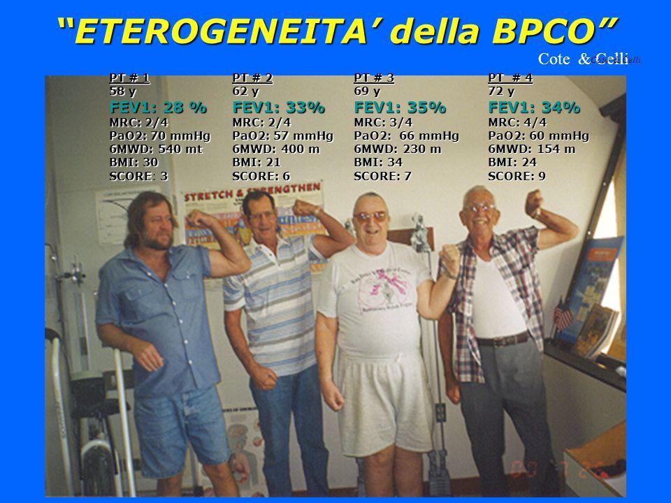 ETEROGENEITA' della BPCO