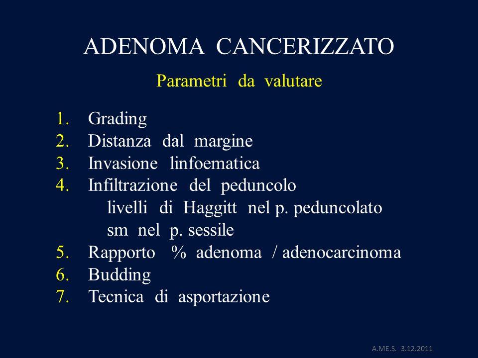 ADENOMA CANCERIZZATO Parametri da valutare 1. Grading