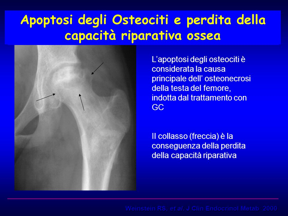 Apoptosi degli Osteociti e perdita della capacità riparativa ossea