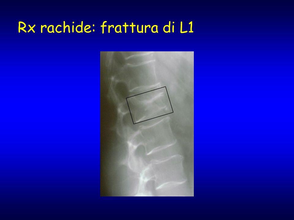 Rx rachide: frattura di L1