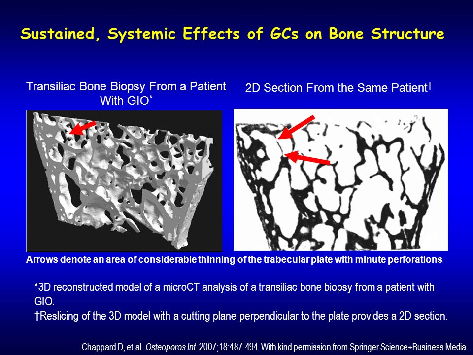 Sustained, Systemic Effects of GCs on Bone Structure