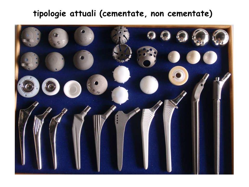 tipologie attuali (cementate, non cementate)