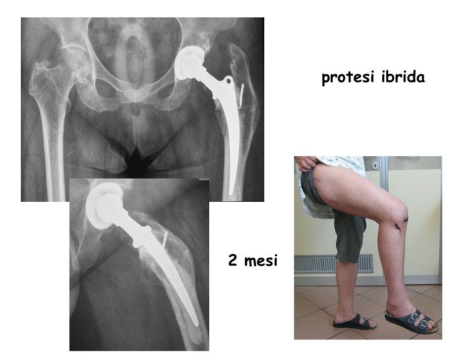 protesi ibrida 2 mesi