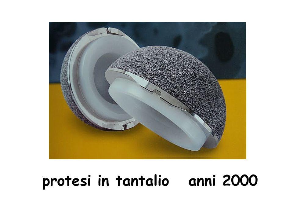 protesi in tantalio anni 2000