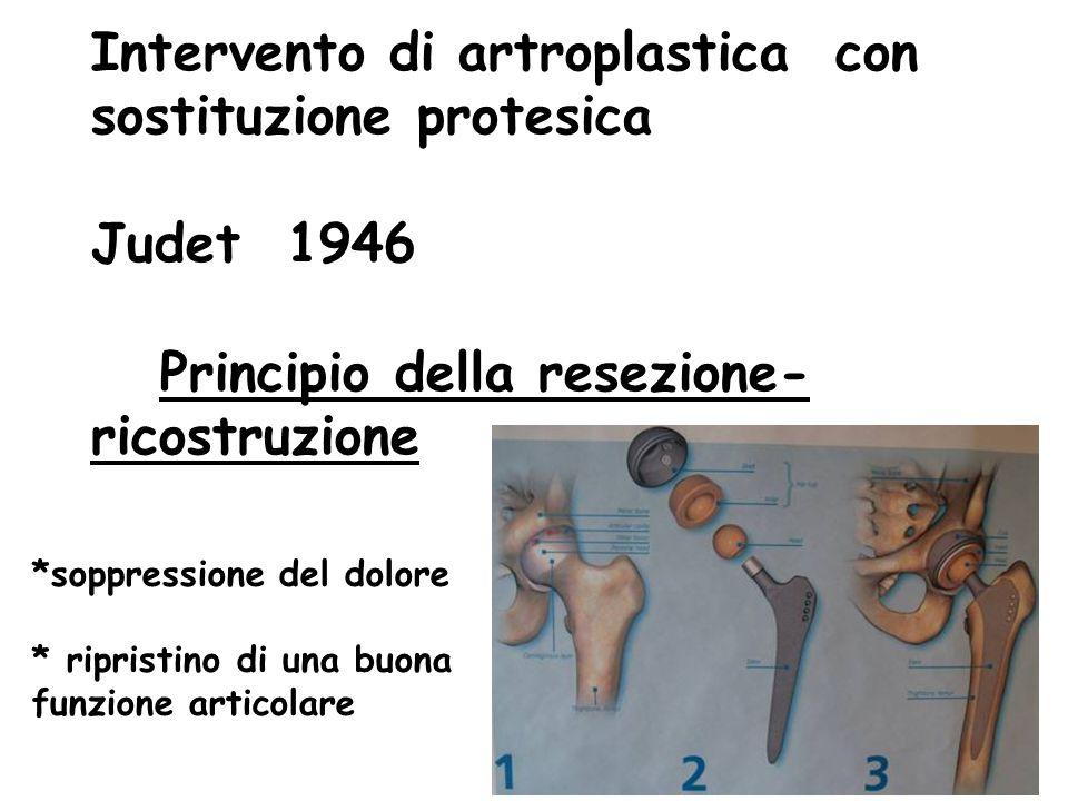 Intervento di artroplastica con sostituzione protesica