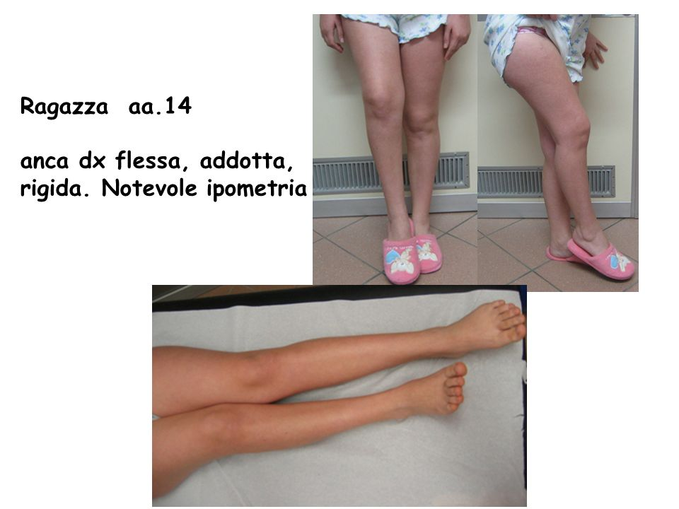 Ragazza aa.14 anca dx flessa, addotta, rigida. Notevole ipometria