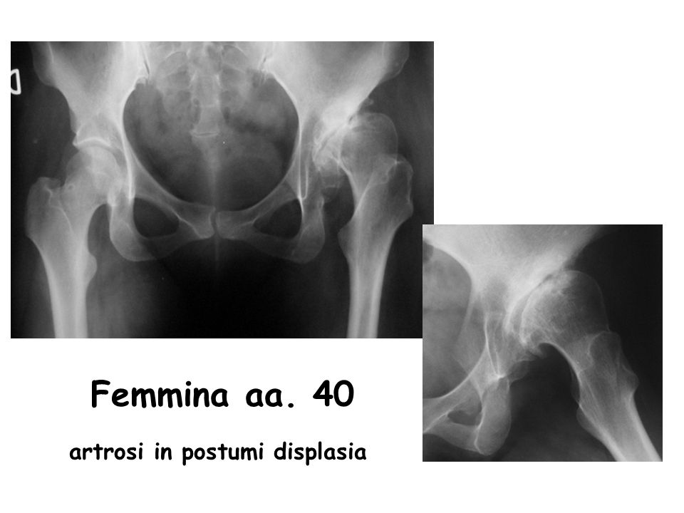 artrosi in postumi displasia