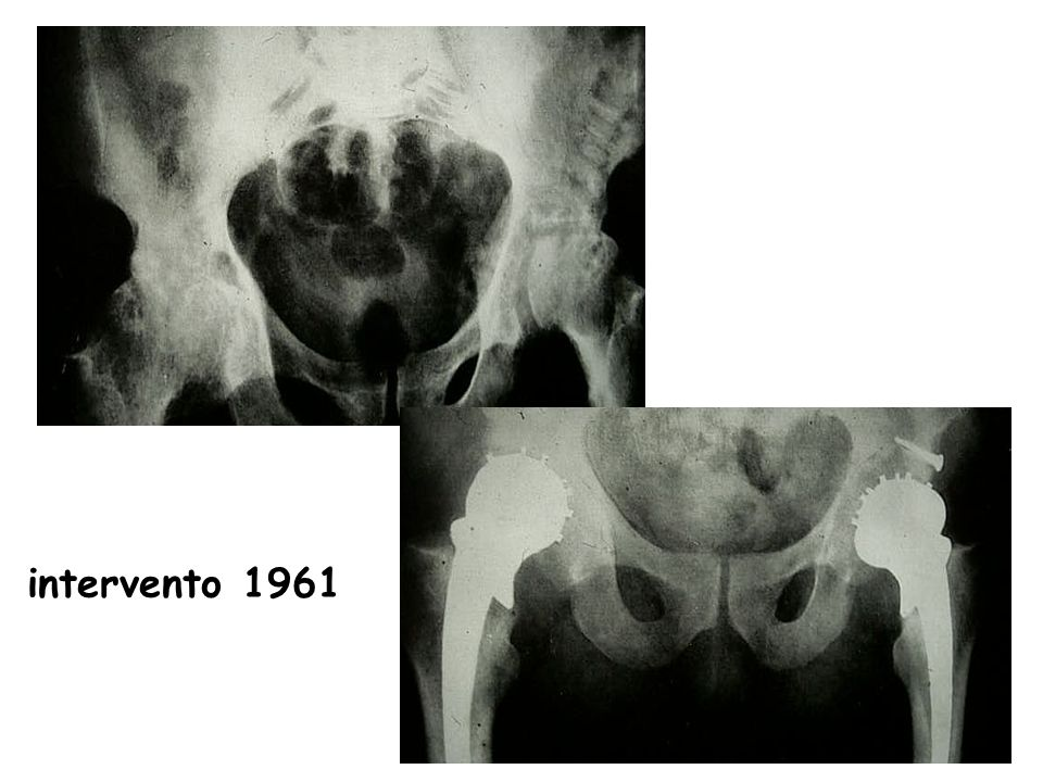 intervento 1961