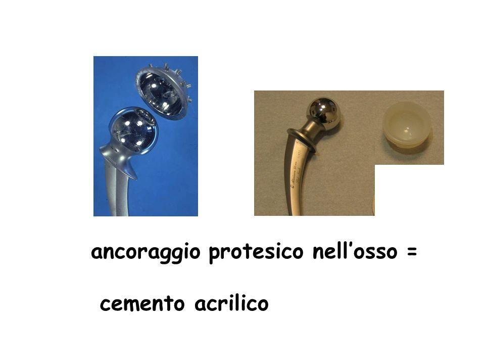 ancoraggio protesico nell'osso =