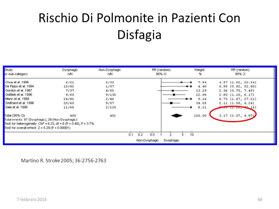 Rischio Di Polmonite in Pazienti Con Disfagia