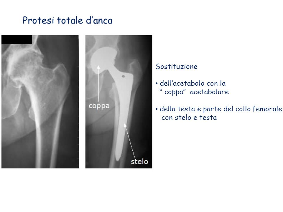 Protesi totale d'anca Sostituzione dell'acetabolo con la