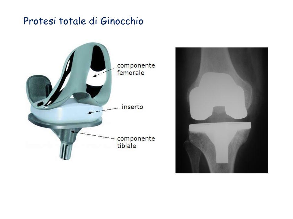 Protesi totale di Ginocchio