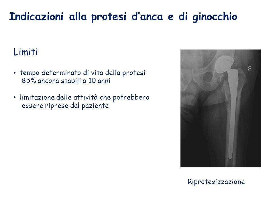Indicazioni alla protesi d'anca e di ginocchio