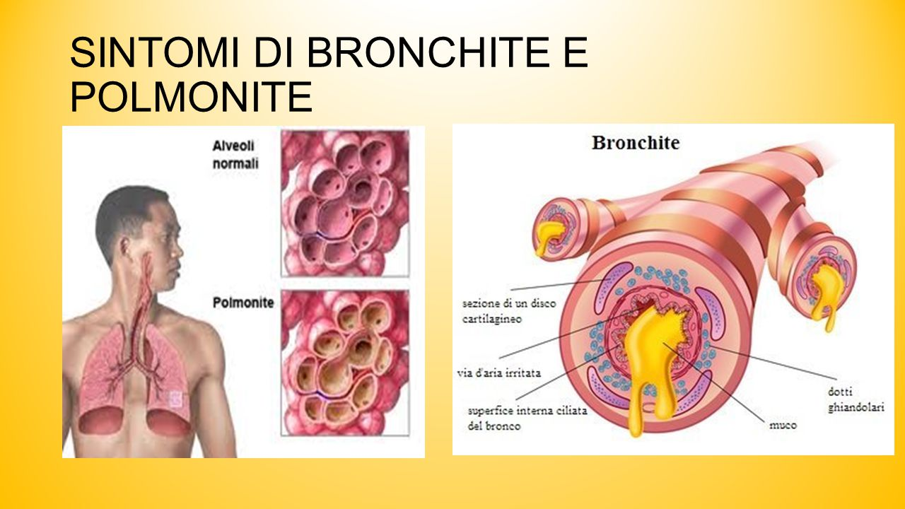 SINTOMI DI BRONCHITE E POLMONITE