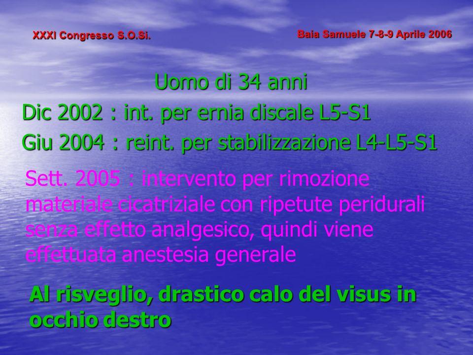 Dic 2002 : int. per ernia discale L5-S1