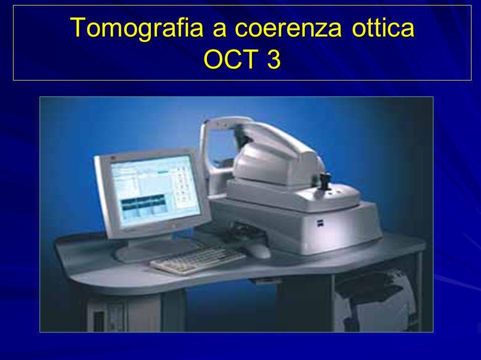 Tomografia a coerenza ottica OCT 3