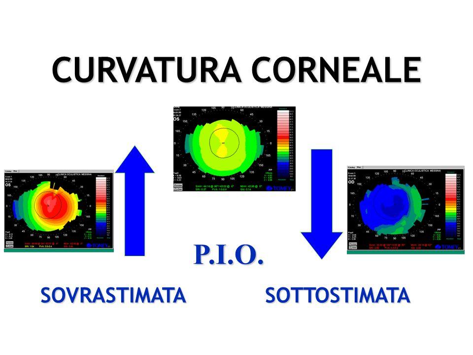 CURVATURA CORNEALE P.I.O. SOVRASTIMATA SOTTOSTIMATA