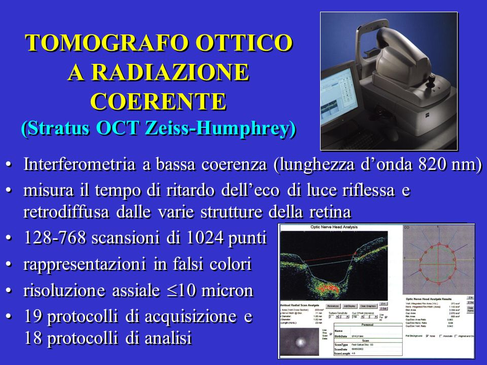 TOMOGRAFO OTTICO A RADIAZIONE COERENTE (Stratus OCT Zeiss-Humphrey)