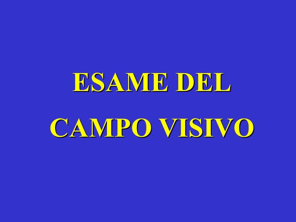 ESAME DEL CAMPO VISIVO