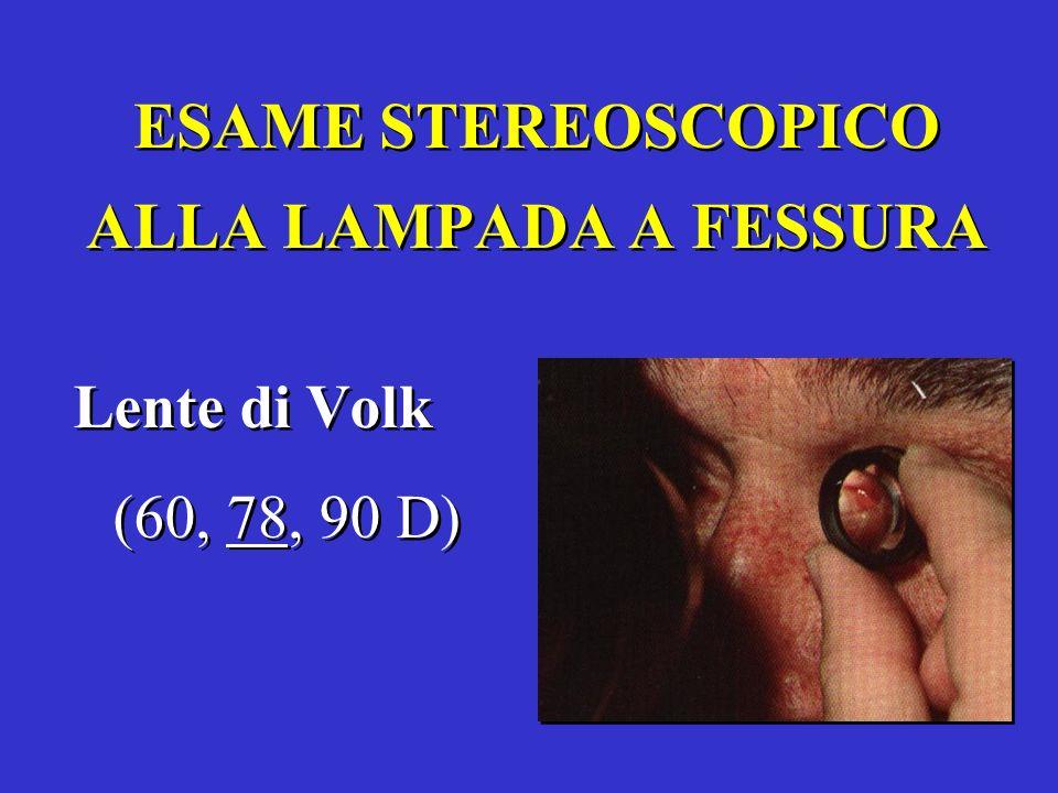 ESAME STEREOSCOPICO ALLA LAMPADA A FESSURA