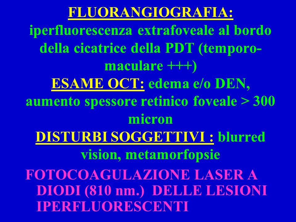 FLUORANGIOGRAFIA: iperfluorescenza extrafoveale al bordo della cicatrice della PDT (temporo-maculare +++) ESAME OCT: edema e/o DEN, aumento spessore retinico foveale > 300 micron DISTURBI SOGGETTIVI : blurred vision, metamorfopsie
