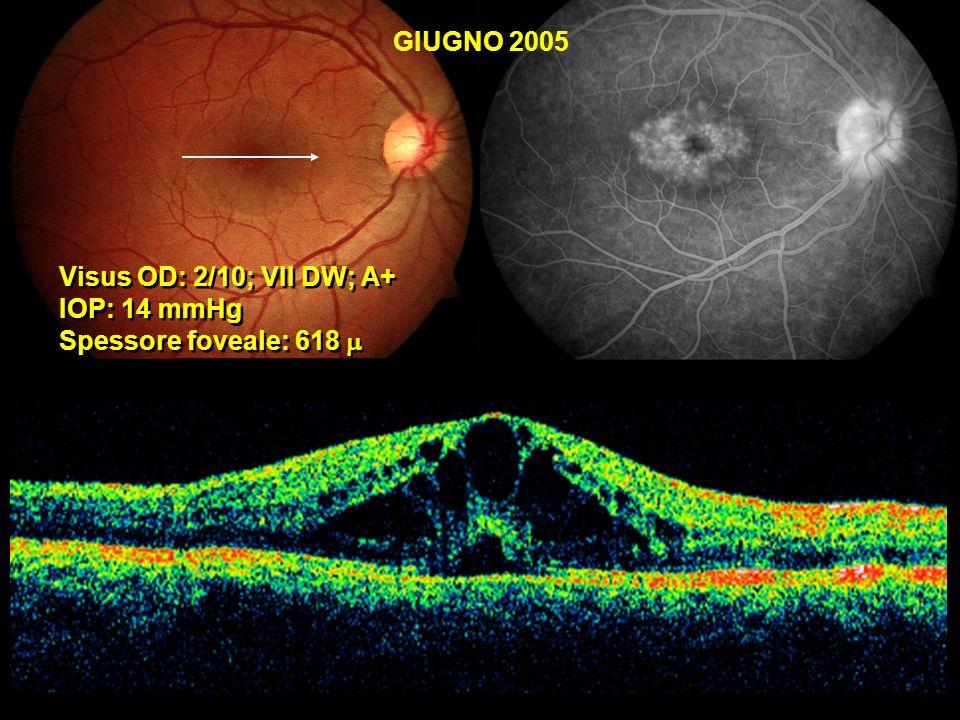 GIUGNO 2005 Visus OD: 2/10; VII DW; A+ IOP: 14 mmHg Spessore foveale: 618 