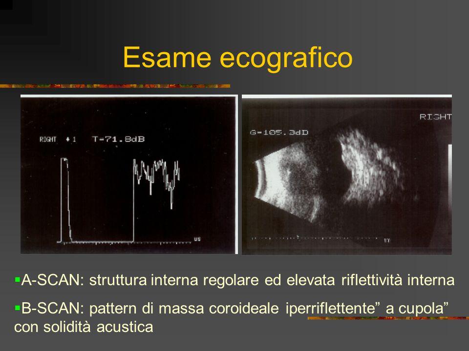 Esame ecografico A-SCAN: struttura interna regolare ed elevata riflettività interna.