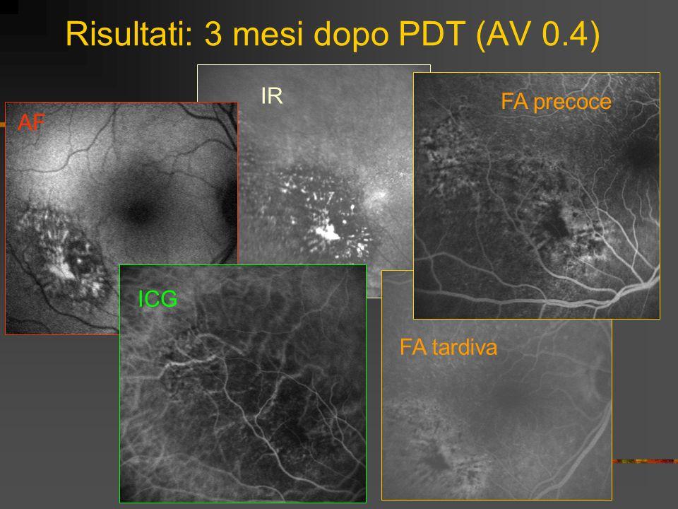 Risultati: 3 mesi dopo PDT (AV 0.4)