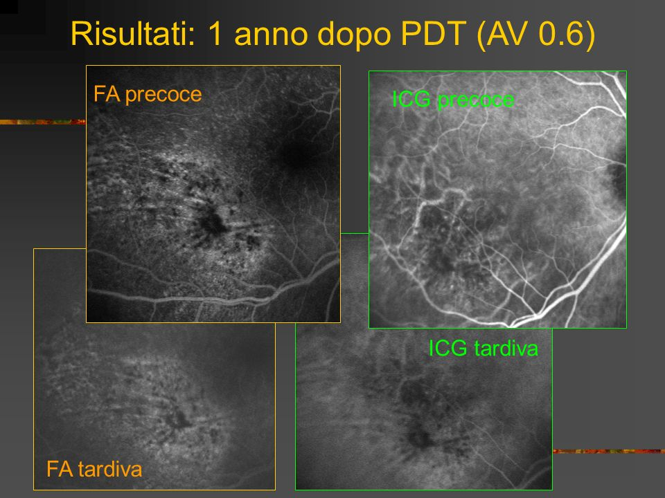 Risultati: 1 anno dopo PDT (AV 0.6)