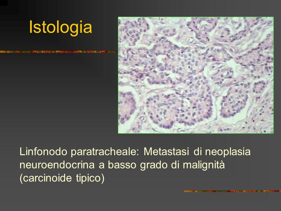 Istologia Linfonodo paratracheale: Metastasi di neoplasia neuroendocrina a basso grado di malignità (carcinoide tipico)