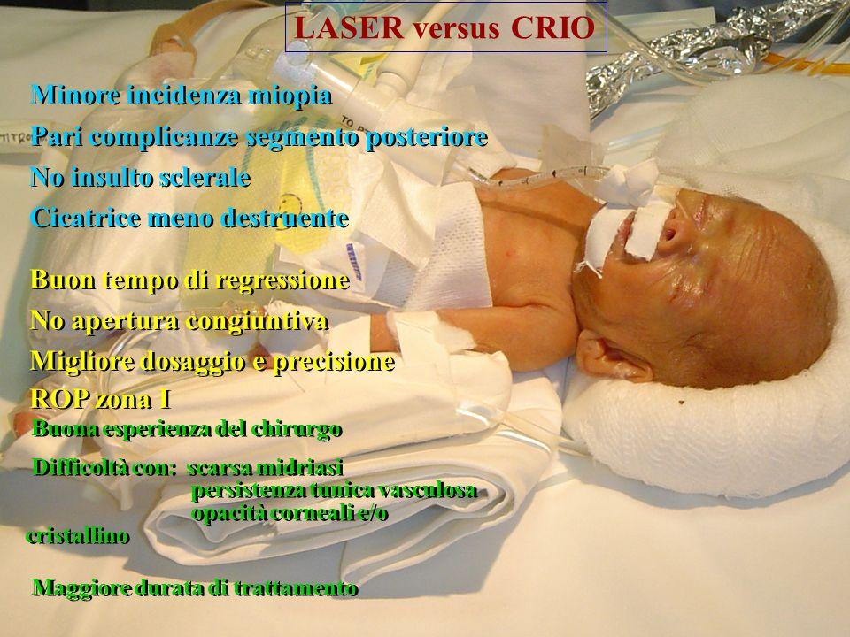 LASER versus CRIO Minore incidenza miopia
