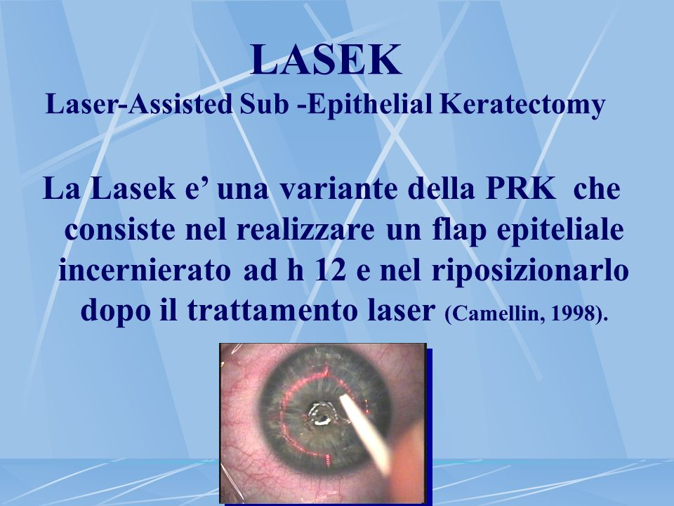 LASEK Laser-Assisted Sub -Epithelial Keratectomy