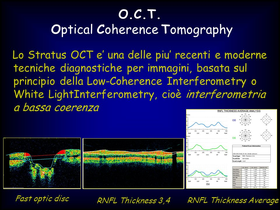 O.C.T. Optical Coherence Tomography
