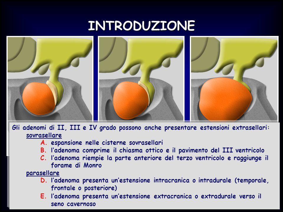 INTRODUZIONE Gli adenomi di II, III e IV grado possono anche presentare estensioni extrasellari: sovrasellare.