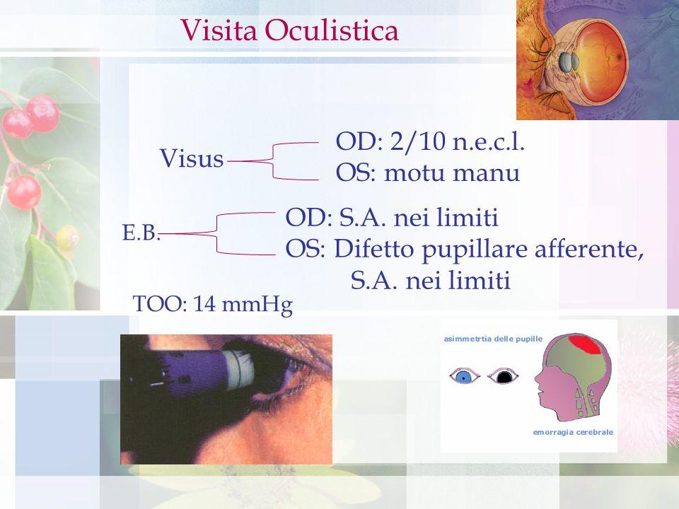 Visita Oculistica OD: 2/10 n.e.c.l. OS: motu manu Visus