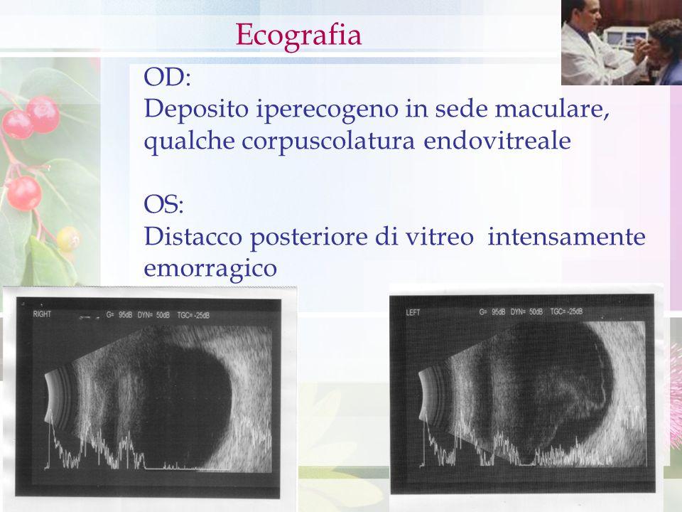 Ecografia OD: Deposito iperecogeno in sede maculare,