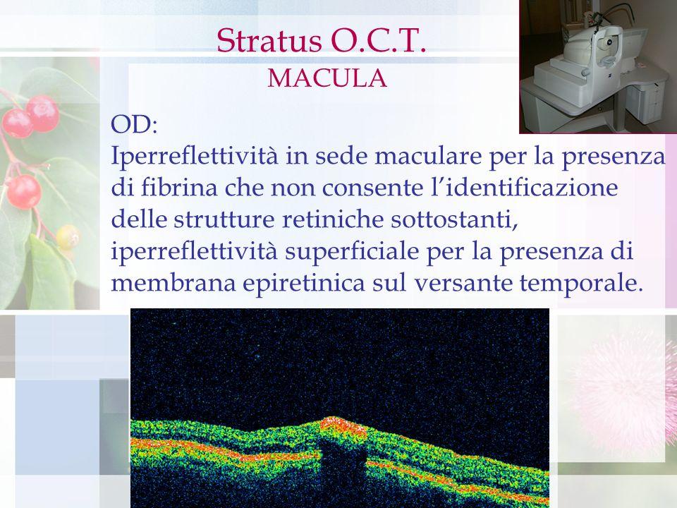 Stratus OCT Stratus O.C.T. MACULA OD: