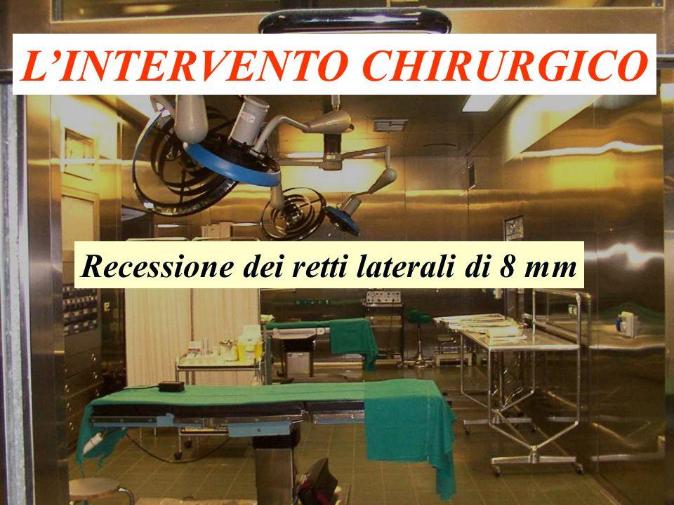 L'INTERVENTO CHIRURGICO Recessione dei retti laterali di 8 mm
