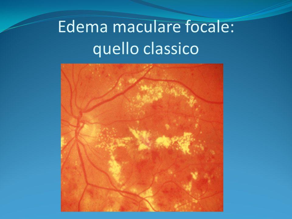 Edema maculare focale: quello classico