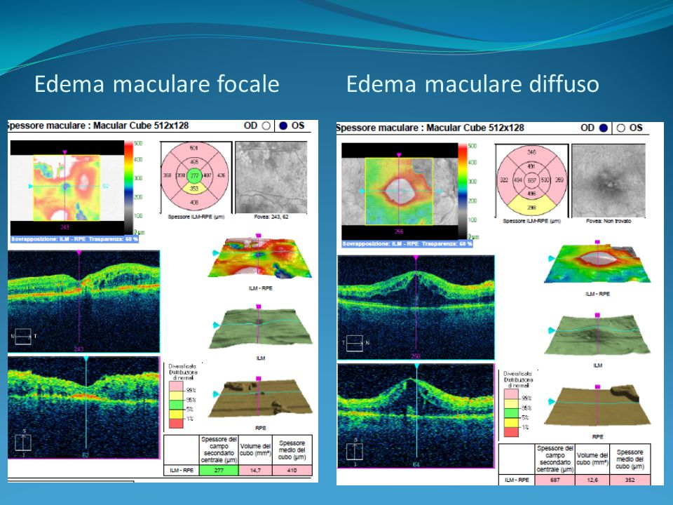 Edema maculare focale Edema maculare diffuso