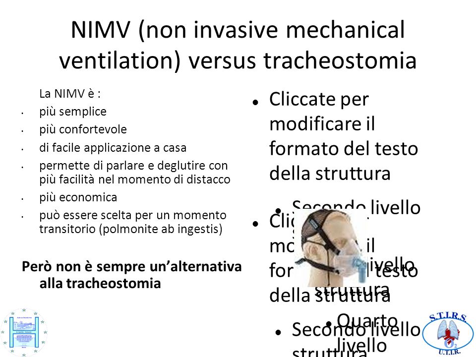 NIMV (non invasive mechanical ventilation) versus tracheostomia