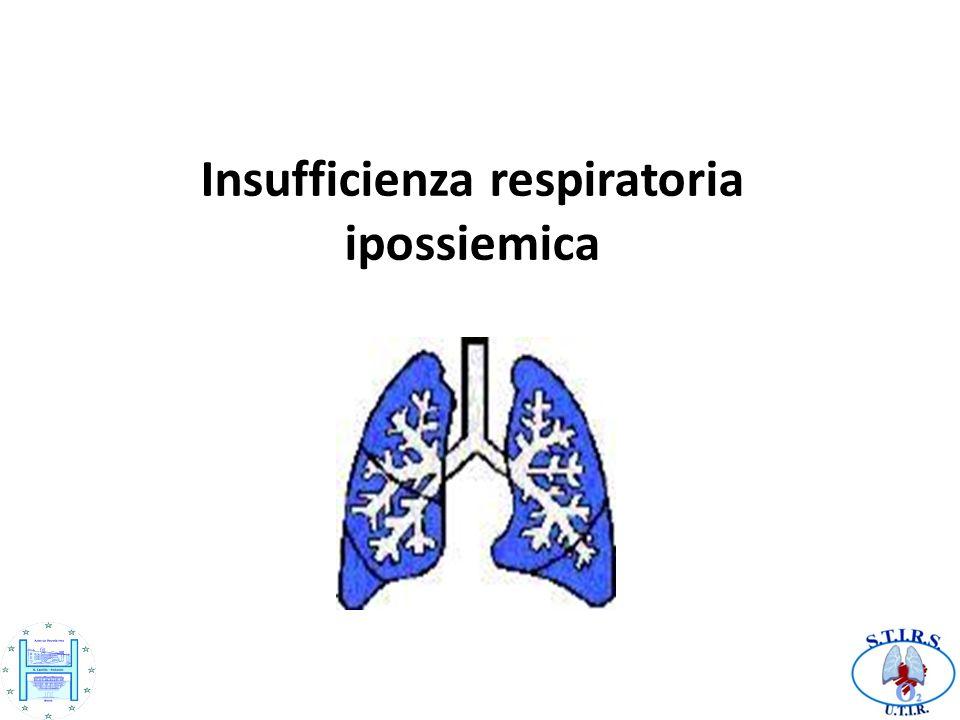 Insufficienza respiratoria ipossiemica