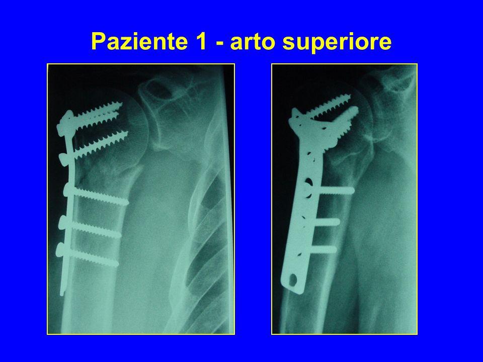 Paziente 1 - arto superiore